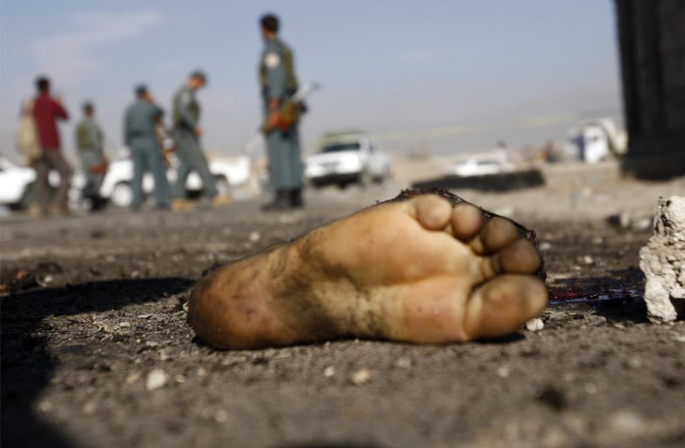Нога террориста-смертника взорвавшего себя, из-за взрыва погибло три мирных жителя и один был ранен. 22 июля 2008 год. REUTERS/Ahmad Masood