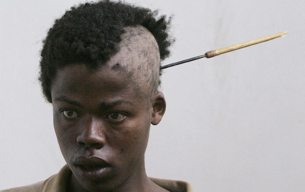 Молодой человек пришёл в больницу со стрелой в голове. В провинции Рифт-Валли города Накуру после спорных выборов кенийцы развернули баталии между этническими бандами, в результате которых погибли по меньшей мере с десяток человек. 26 января 2008 год. REUTERS/Peter Andrews